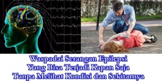 Nama Obat Epilepsi Di Apotik